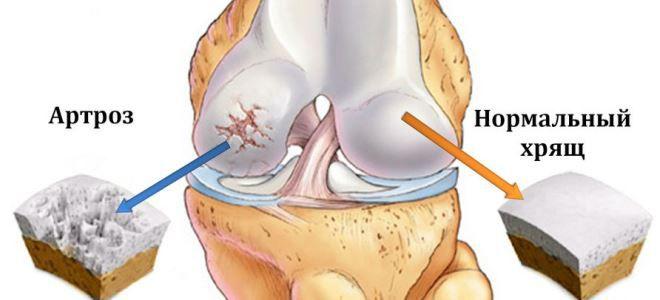 a térd fermatron artrózisa