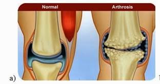 artrózisos ízületek leírása