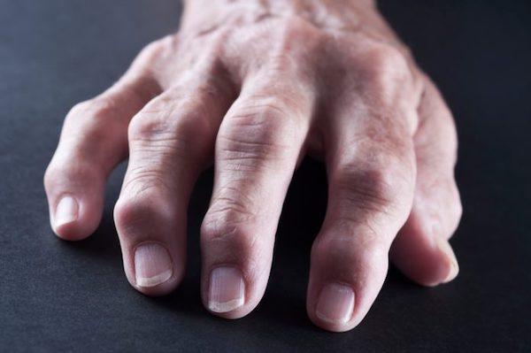 fájdalom a kezek ízületeiben melyik orvos