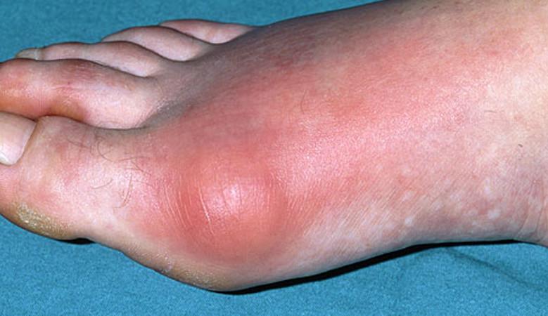 hogy van a lábak ízületeinek gyulladása