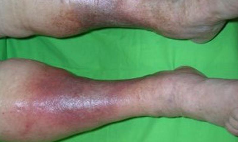 gyógyítható-e a csípő artrózisa
