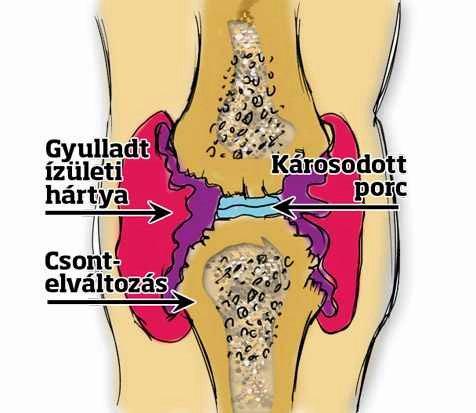 rögzített ízületi kezelés