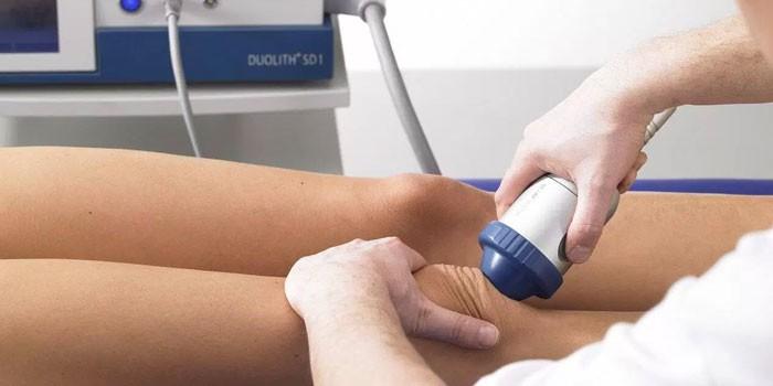 Mi a térd osteoarthritisének deformálása: a DOA 1 és 2 fokos diagnózis - Dongaláb