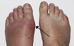 köszvény tünetei lábon