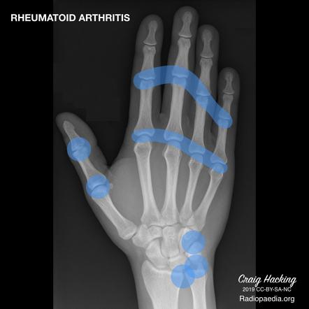 váll fájdalom okai a nyaki gerinc kenőcsének csontritkulása