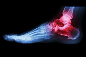 7 fájdalom, ami a halálodat jelezheti előre - Egészségtüköfelsomatraiskola.hu