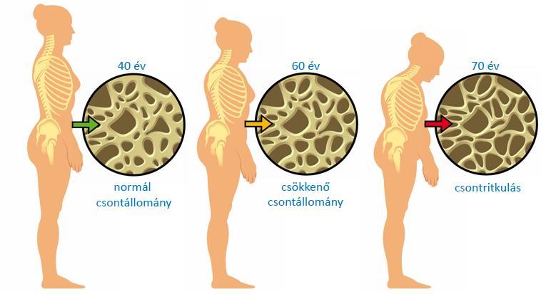 a hátsó kenőcsült csontritkulás kezelése