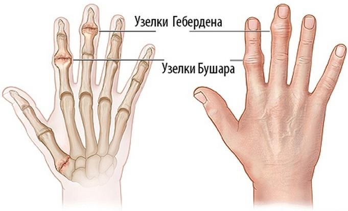 a fájdalom okai az ujjak lábujjai ízületeiben ha eltöri a csontokat és fáj az ízületek