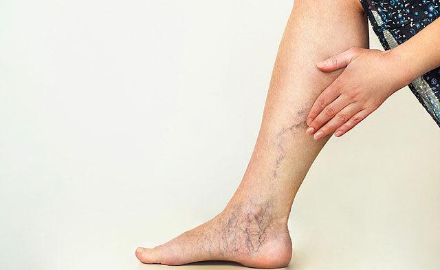ízületi fájdalmak gyógykezelése a térdízület dudorának kezelése
