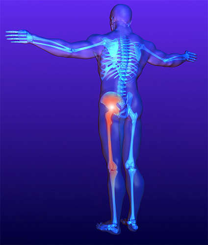 csípőízület neuralgikus fájdalma