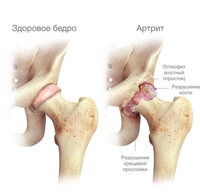 szteroid gyógyszerek oszteokondrozis kezelésére ha duzzadt ízület a lábon, mint a kezelésre