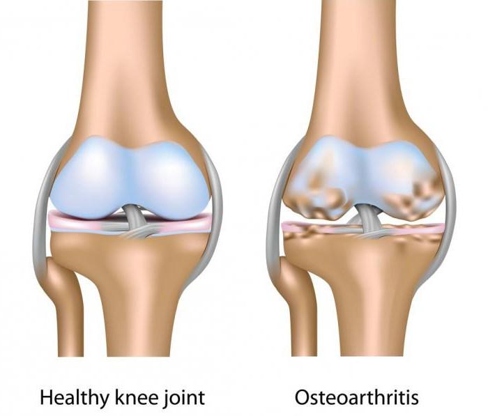 a csípőízület artrózisáig fitball térd ízületi gyulladás esetén