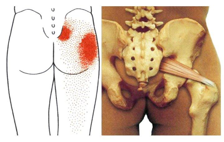 melegítő kenőcs hát háton oszteokondrozis esetén naftalán ízületi kezelések áttekintése