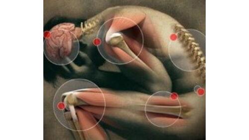 hogyan lehet kezelni az akut artrózist fájó gerinc és ízületek
