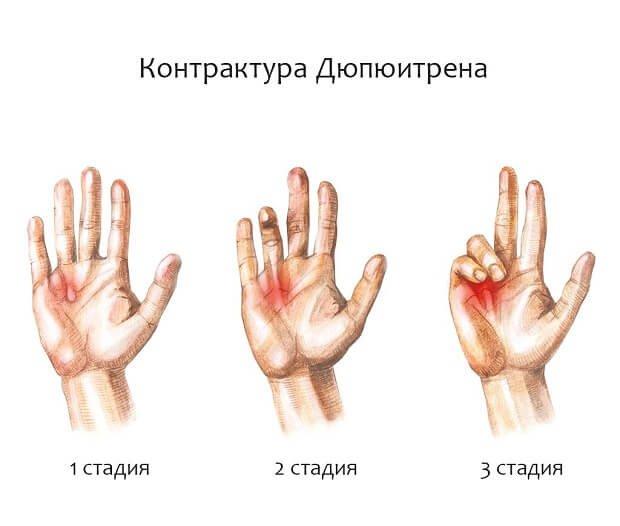 az ujjak ízületei megsérülnek, ha hajlítva
