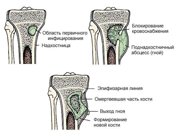 miért fájnak a csípőízületek hosszú séta után gyógyszerek térd szalagok kezelésére