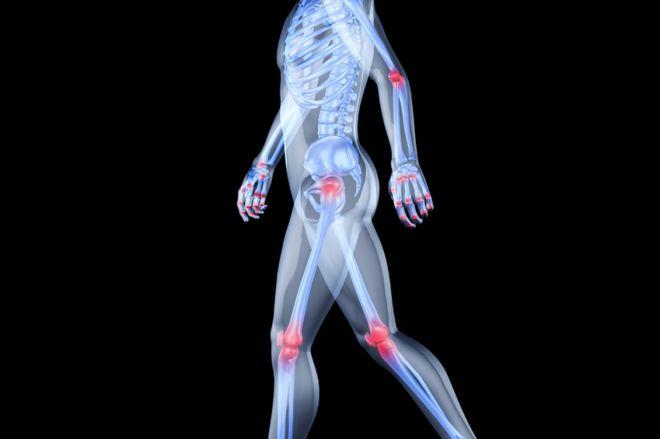 gyógyszer a hát és az ízületek számára perifériás ízületi osteoarthritis gyógyszerek
