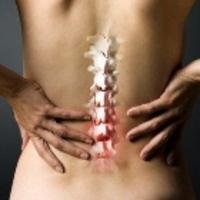 derékfájás, amely kiterjed a csípőízületre