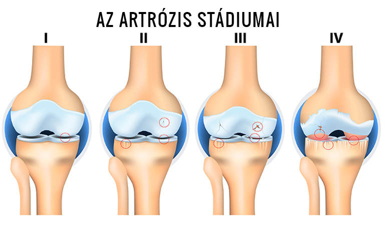 artrózis kezelési rendjei elviselhetetlen fájdalom a térdízületben