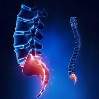 lüktető fájdalom a gerincben lábfájdalom a térd protézise után