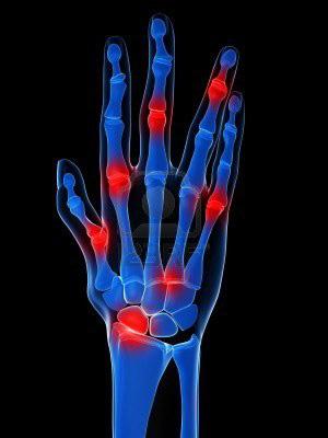 mi az ujjak ízületi gyulladása mozgás az ízületben artrózissal 2 fok