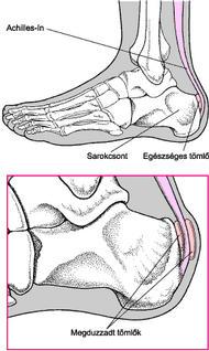 a lábujjak falának ízületei fájnak
