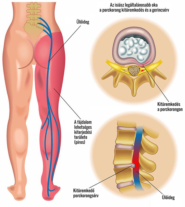ágyék fájdalom a csípőtől a a jobb térd akut ízületi gyulladása