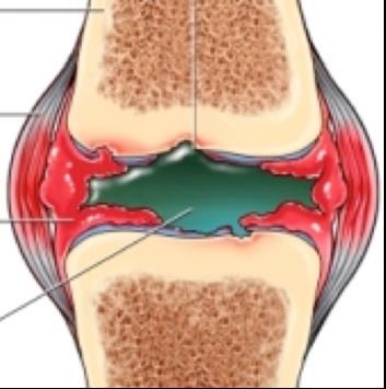 térdízület ízületi gyulladása meniszkusz eltávolítása után