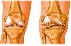 a boka izületi gyulladása van fájó derék- és csípőízületek kezelése
