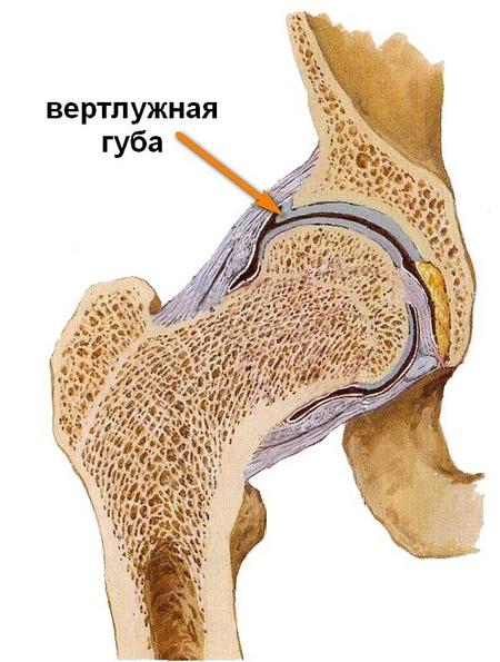 a bal csípőízület coxarthrosis-kezelése