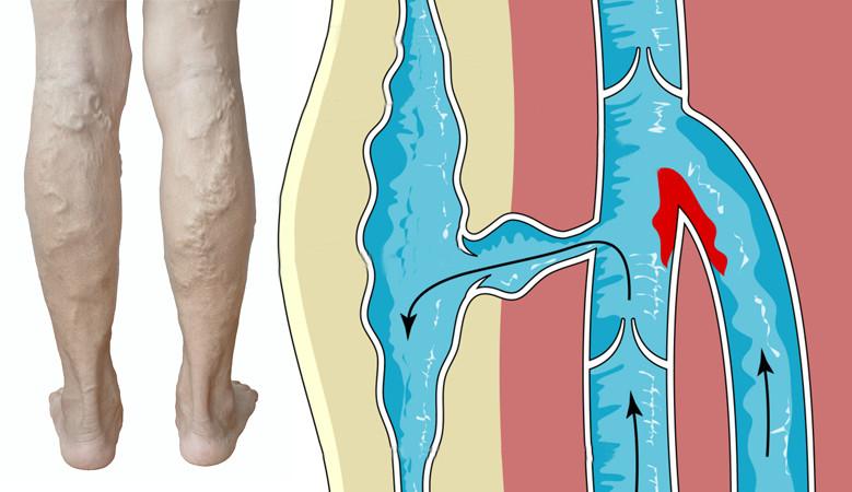 a boka ízületek artrózisának neve