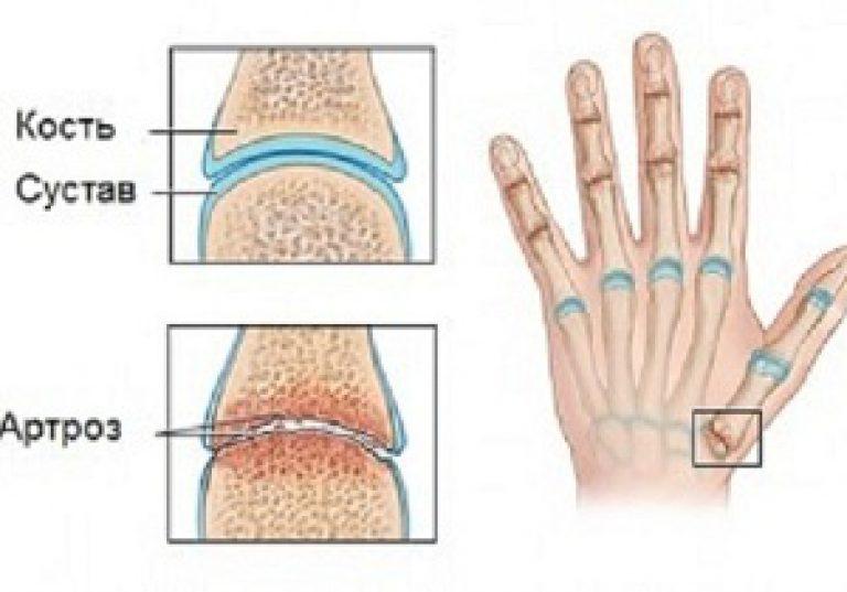 1 fokos csípőízületek deformáló artrózisának jelei