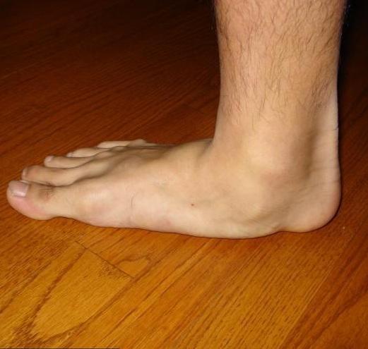 dagadt láb kezelése házilag