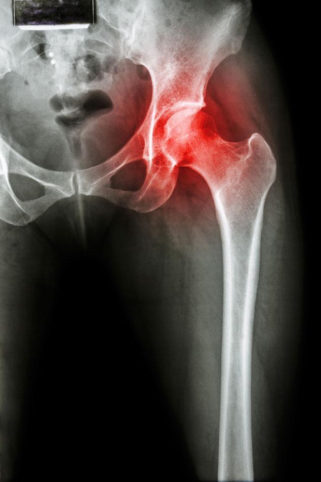 a lábujjízület duzzadt és fáj a csípőfájdalom a láb kezelését eredményezi