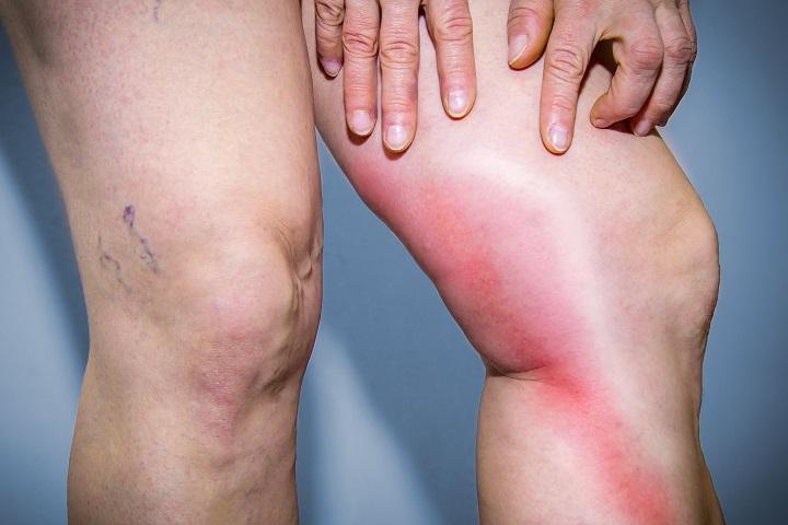a lábízületek gyulladásának kezelése