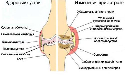 a térd gonartrózisának kezelése 2-3 fokkal