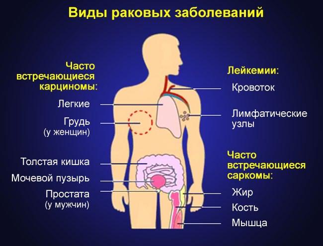 a térd röntgenfelvétele artritiszben