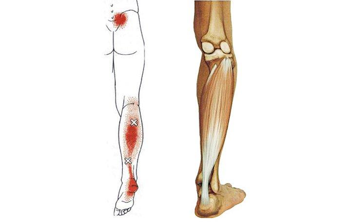 a térd utolsó szakaszának artrózisa
