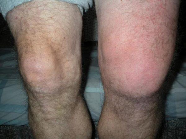 A fájdalom a térd ízületi okok és kezelési lehetőségek
