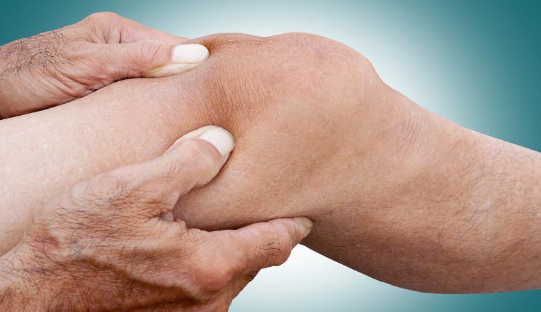degeneratív ízületi bemutató az összes ízület egyszerû artrózisa