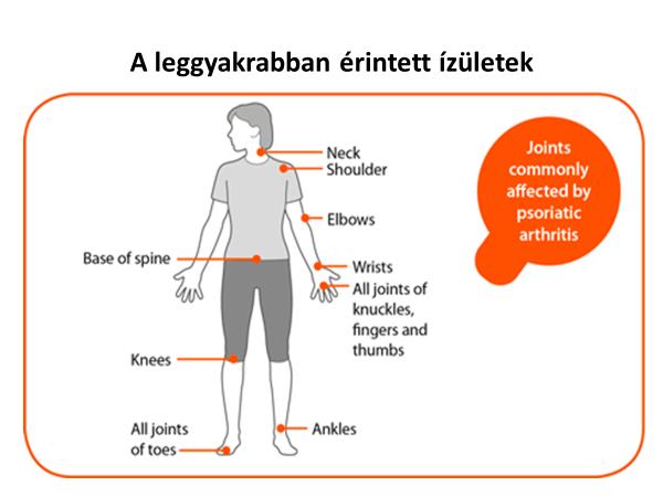 a vállízület psoriasis ízületi gyulladása amikor az ízületek 30 ° -tól fájnak