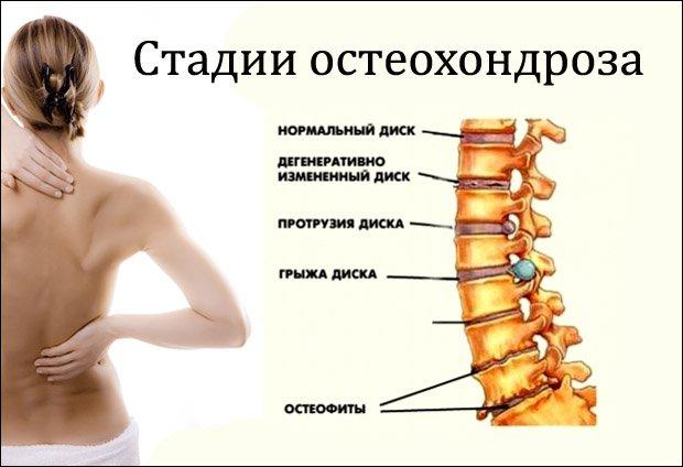 milyen kenőcsök a mellkasi régió osteochondrozisához