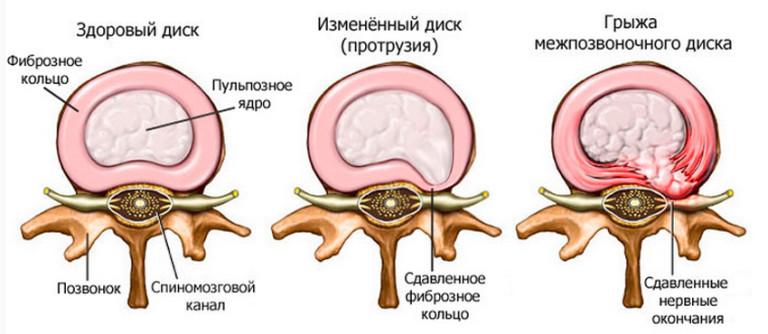 Egy rákellenes gyógyszer jó hatású gerincvelő-sérülésben is