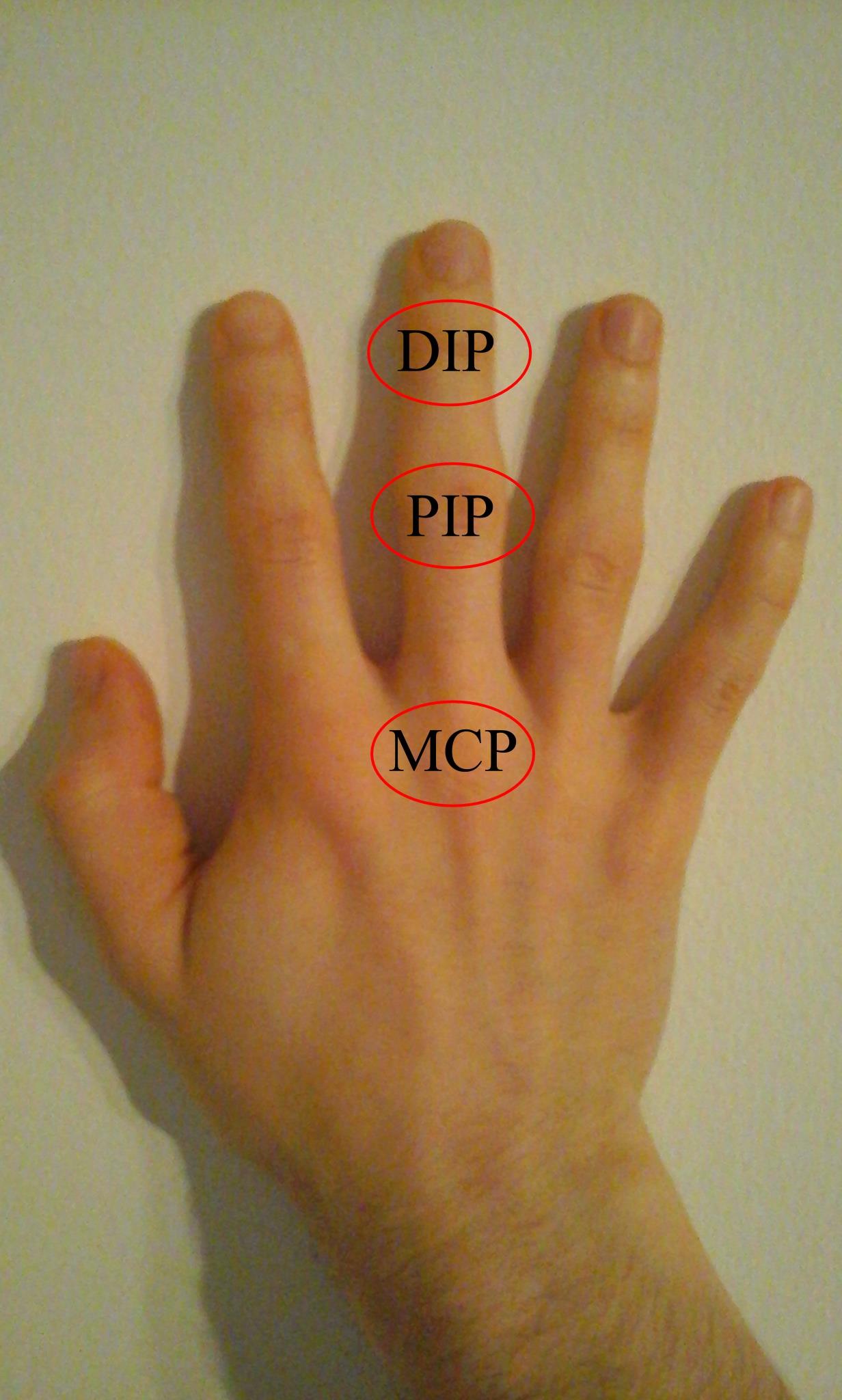 a kéz hüvelykujjainak ízületei