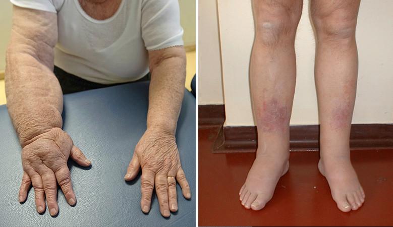 A lábcsont ízületei: okai, tünetei, a betegség kezelése - Köszvény July