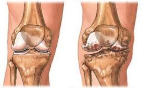arthroxia gyógyszer ízületi betegségek kezelésére