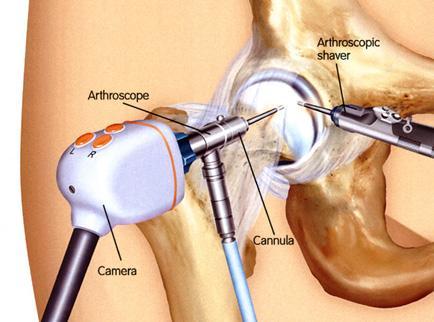 annál jobb kezelni a csípőízület artrózisát