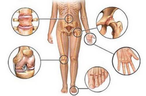 arthritis könyökkezelés