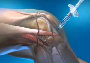 milyen gyógyítók kezelik az ízületi gyulladást az ujjak ízületi gyulladása elsősegély