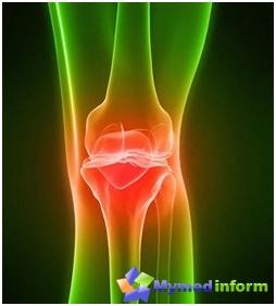 artrózis kezelése saki sárral térdízületi gyulladás 10 év alatt